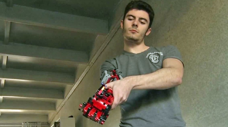 LEGO Prosthetic Featured 800 445