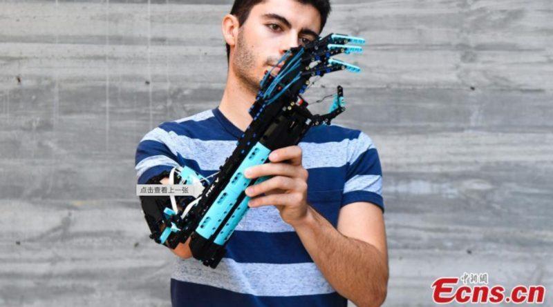 David Aguilar Prosthetic Arm FI